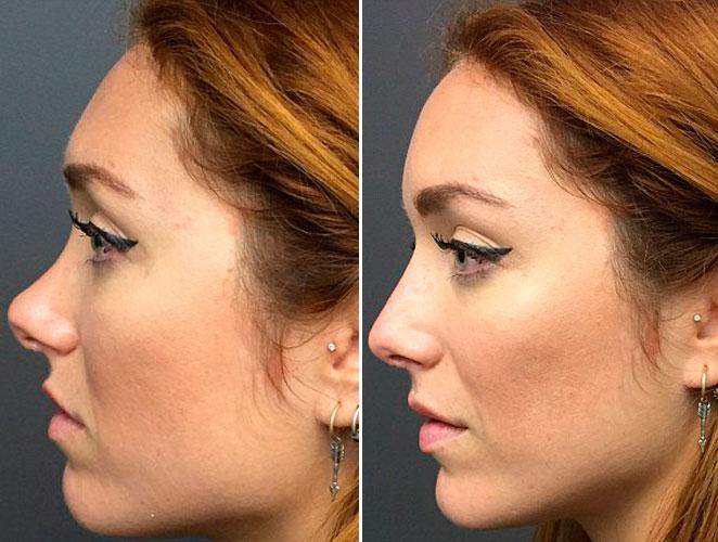 Así se 'opera' la nariz sin pasar por el quirófano