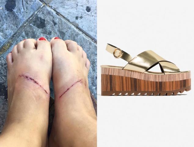 f11be3a1ff0218 Estas sandalias doradas de Zara provocan quemaduras en los pies ...