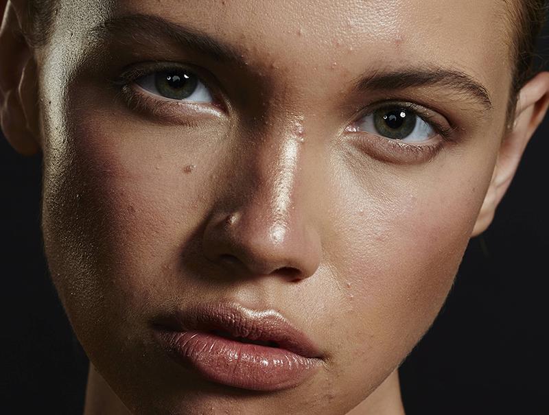 Todas las novedades para acabar con el acné, explicadas por tres expertos