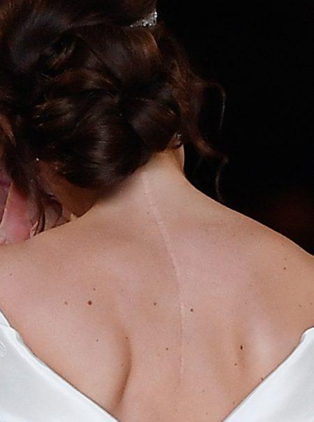 La cicatriz que Eugenia de York dejó a la vista en su boda inspira a las redes a enseñar las suyas