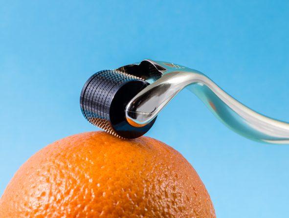 microneedling rodillo con agujas