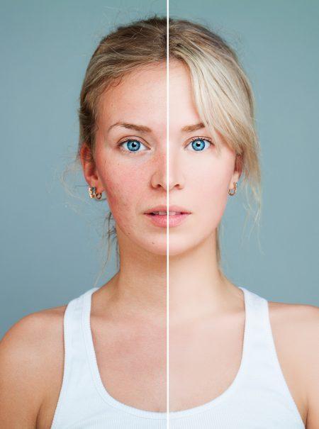 Así es como las drogas estropean nuestra piel