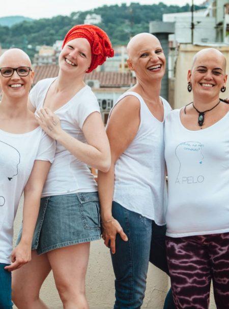 Así es ser mujer y vivir con alopecia: «Yo he visto a gente llorar en la peluquería, así que no me digas que es solo pelo»