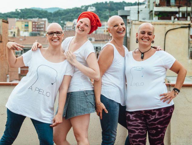 Alopecia en mujeres