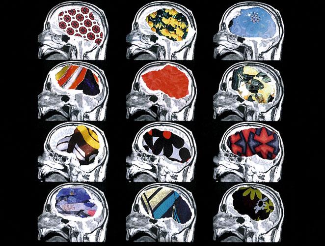 Cerebro moda