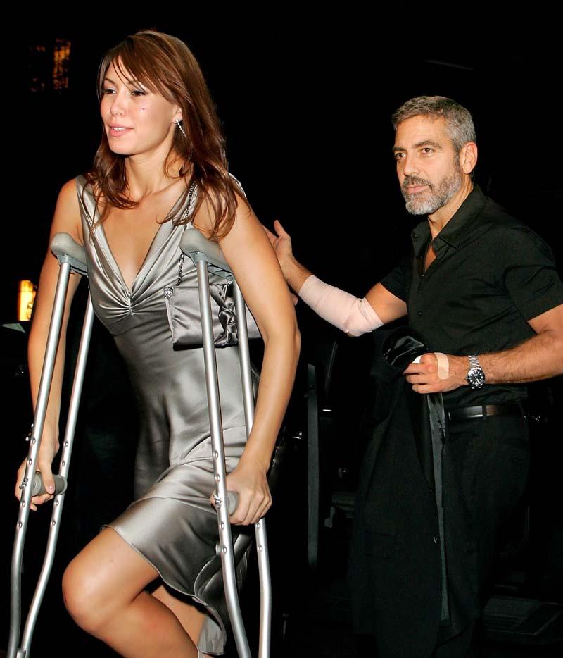 Los famosos tambien se lesionan