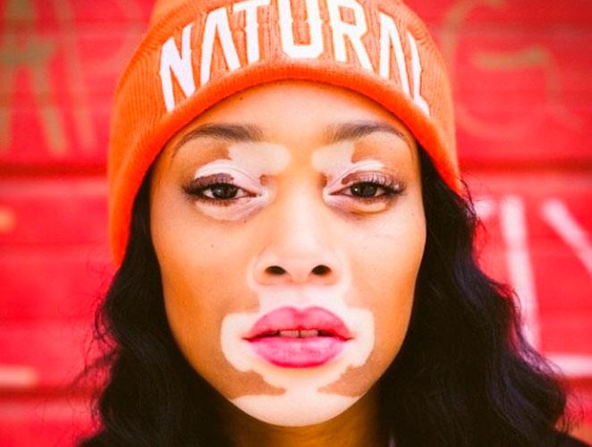 vitiligo